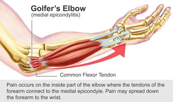 Reduce elbow pain and keep golfing - Arlington Pain and Rehab